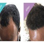 For Receding Hair