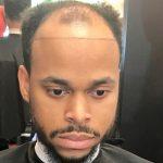 For Bald Spot